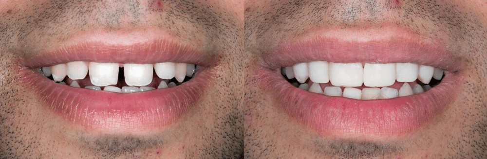 Braddon Dental Cosmetic Veneers before and after