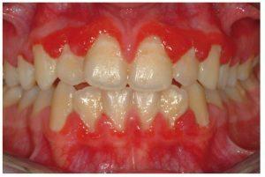 plasma_cell_gingivitis-1415C67843F7134A27C