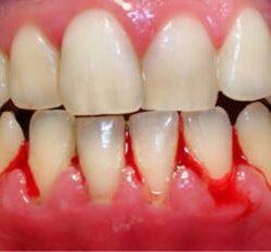 image bleeding gums